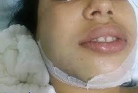 Homem é preso após quebrar o maxilar da esposa durante espancamento na frente do filho de dois anos